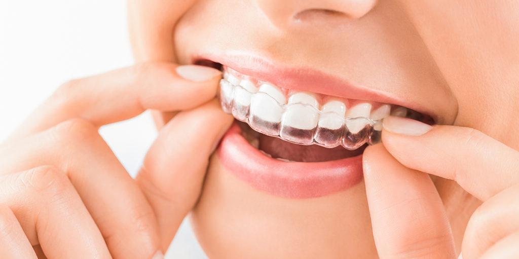 ¿Cómo alinear mis dientes?